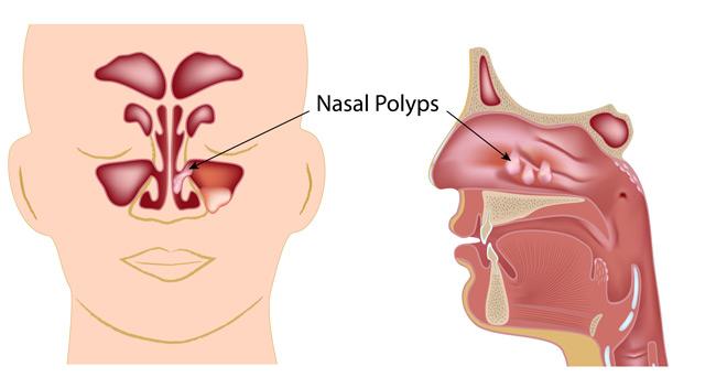 Prednisone sinus infections ear stuffiness
